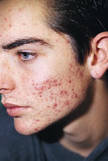 I posti sulla medicina di faccia in una farmacia sono non costosi e qualitativi